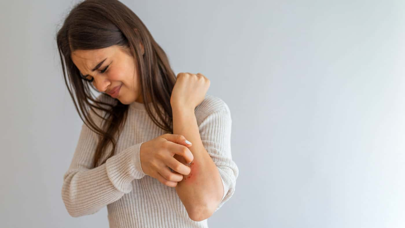 Eczema vs. Psoriasis